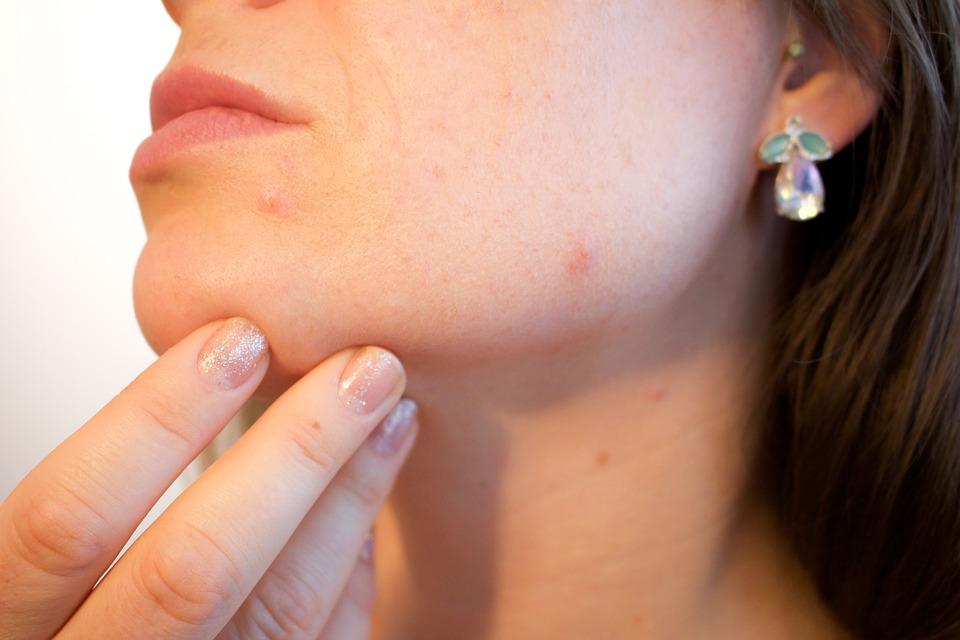 Aroma Zone produits naturels acné