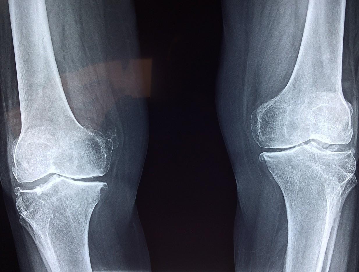 Thomas Le Carrou présente les bienfaits de l'exercice physique sur l'arthrose